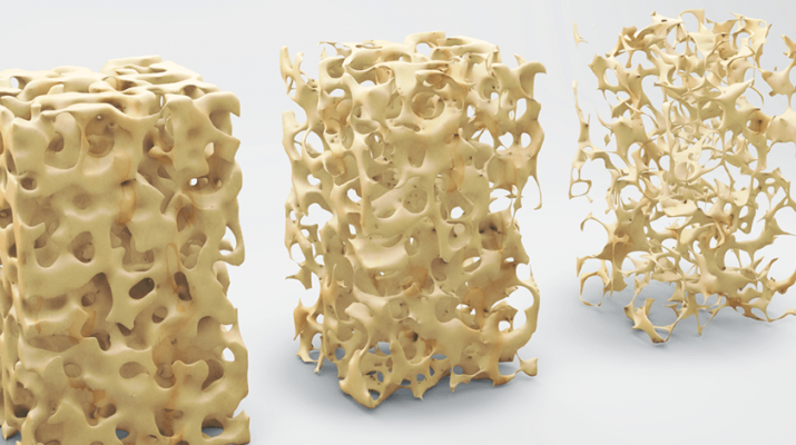 Bone structure 3-D illustration, normal and with osteoporosis. Stock illustration.