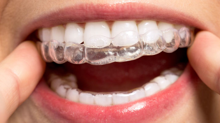 Once the aligner is totally in place, it is very difficult to see unless one is looking for it. It's like contact lenses for orthodontia.